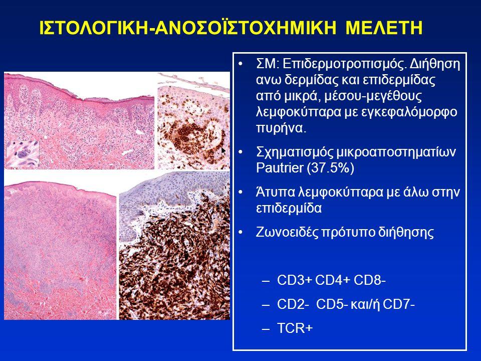 ΙΣΤΟΛΟΓΙΚΗ-ΑΝΟΣΟΪΣΤΟΧΗΜΙΚΗ ΜΕΛΕΤΗ ΣS: κυτταρικά διηθήματα πιο μονότονα, απουσιάζει ενίοτε ο επιδερμοτροπισμός Στο 1/3 των δερματικών βιοψιών μη-ειδική εικόνα Λεμφαδένες: πυκνή, μονότονη διήθηση από κύτταρα Sezary με εξάλειψη της φυσιολογικής αρχιτεκτονικής Ο μυελός των οστών μπορεί να προσβληθεί αλλά τα διηθήματα είναι αραιά