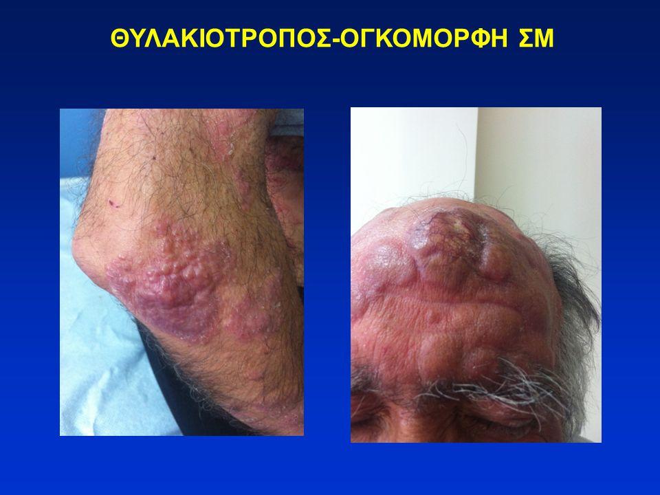 -Vorinostat (SAHA) για CTCL ανθεκτικά σε 2 προηγηθείσες συστηματικές θεραπείες.