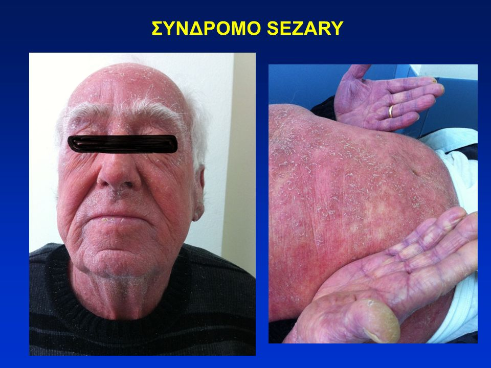 T-λέμφωμα/λευχαιμία ενηλίκων (ΑTLL) Λεμφωματώδης μορφή: λεμφαδενοπάθεια χωρίς διήθηση περιφερικού αίματος, δερματικές βλάβες Χρόνια μορφή: αποφολιδωτικό δερματικό εξάνθημα, λίγα άτυπα λεμφοκύτταρα στο περιφερικό αίμα Έρπουσα μορφή: δερματικές ή πνευμονικές βλάβες, >5% νεοπλασματικά κύτταρα στο περιφερικό αίμα