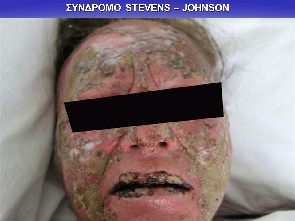 ΣΥΝΔΡΟΜΟ STEVENS – JOHNSON