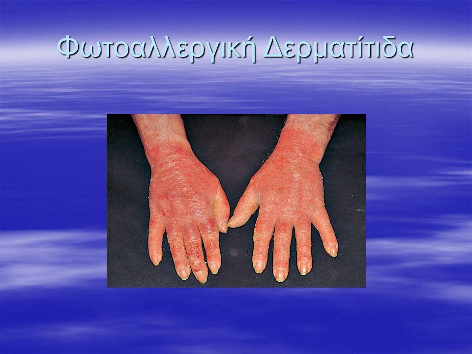 Φωτοαλλεργική Δερματίτιδα