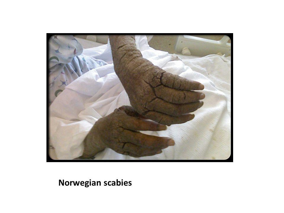 Norwegian scabies