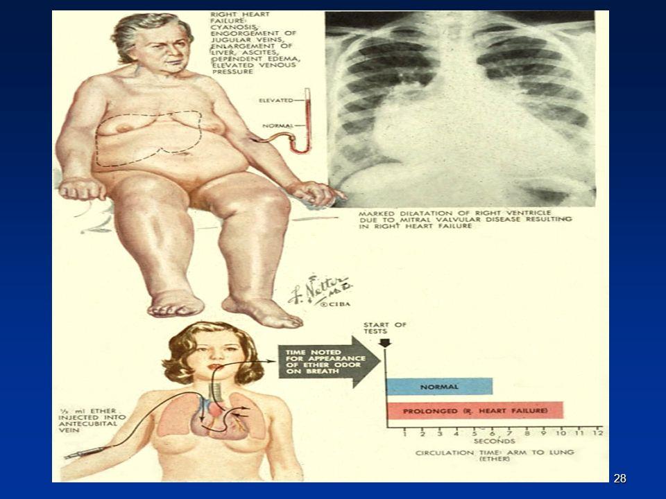 ΟΞΕΙΑ ΚΑΡΔΙΑΚΗ ΑΝΕΠΑΡΚΕΙΑ ΟΡΙΣΜΟΣ Η Οξεία Καρδιακή Ανεπάρκεια (ΟΚΑ) ορίζεται ως η ταχεία έναρξη συμπτωμάτων και σημείων μετά από ανωμαλία της καρδιακής λειτουργίας.