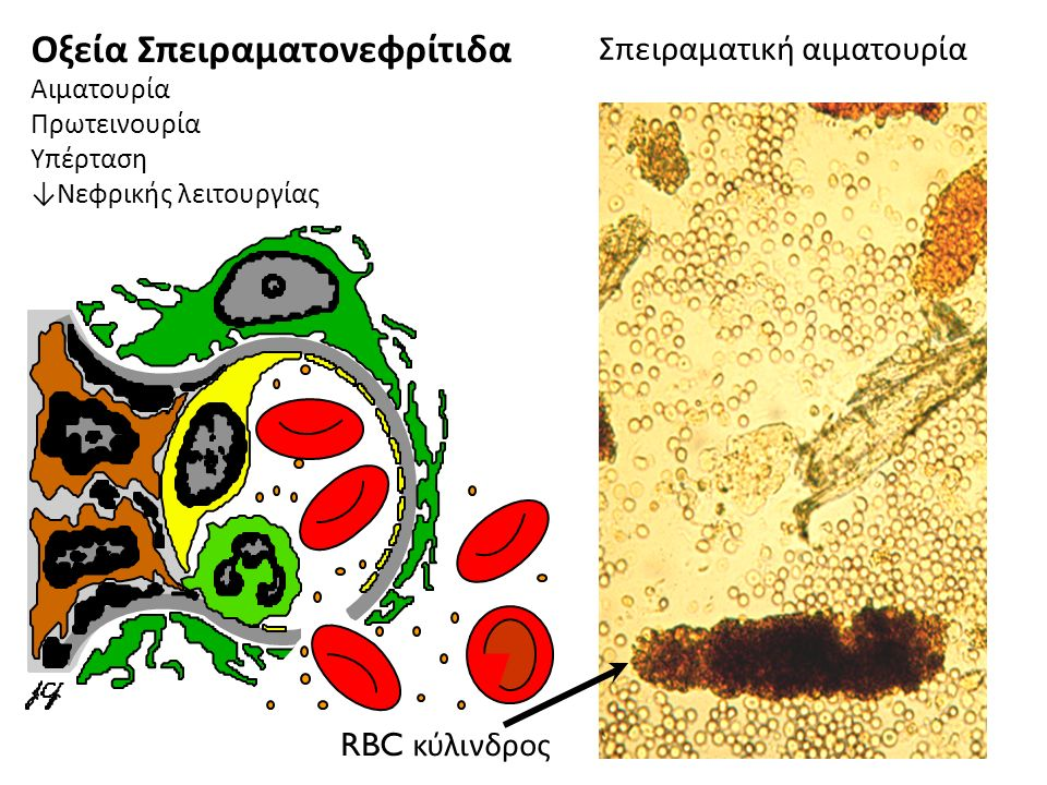 RBC κύλινδρος Σπειραματική αιματουρία Οξεία Σπειραματονεφρίτιδα Αιματουρία Πρωτεινουρία Υπέρταση ↓ Νεφρικής λειτουργίας