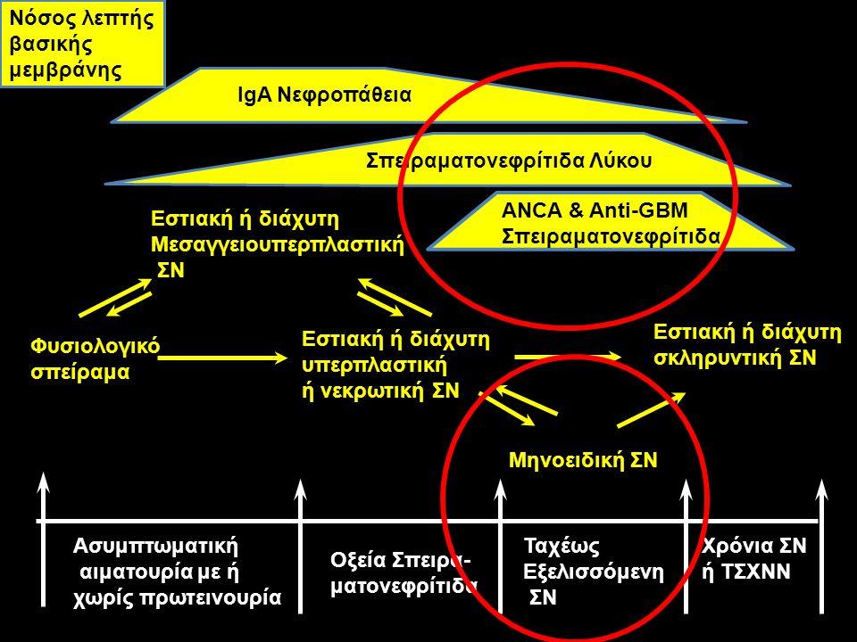 Φυσιολογικό σπείραμα Εστιακή ή διάχυτη Μεσαγγειουπερπλαστική ΣΝ Εστιακή ή διάχυτη υπερπλαστική ή νεκρωτική ΣΝ Εστιακή ή διάχυτη σκληρυντική ΣΝ Μηνοειδ