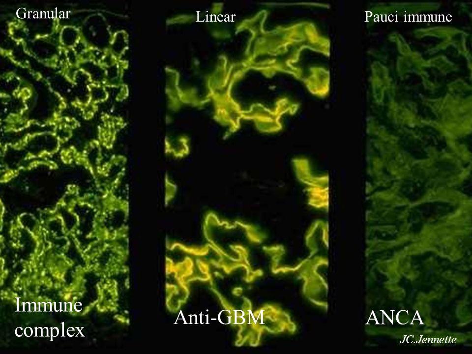 Granular LinearPauci immune JC.Jennette Ιmmune complex Anti-GBM ANCA
