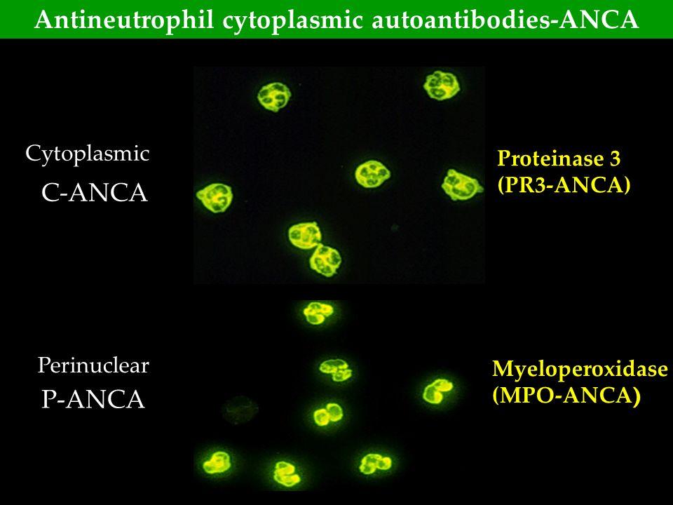 P-ANCA C-ANCA Cytoplasmic Perinuclear Myeloperoxidase (MPO-ANCA ) Proteinase 3 (PR3-ANCA) Antineutrophil cytoplasmic autoantibodies-ANCA