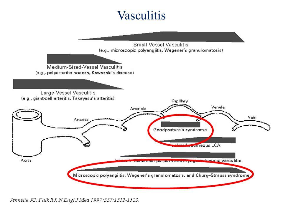 Vasculitis Jennette JC, Falk RJ. N Engl J Med 1997;337:1512-1523.