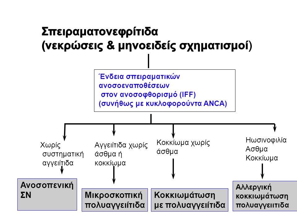Ένδεια σπειραματικών ανοσοεναποθέσεων στον ανοσοφθορισμό (IFF) (συνήθως με κυκλοφορούντα ANCA) Χωρίς συστηματική αγγειίτιδα Αγγειίτιδα χωρίς άσθμα ή κ