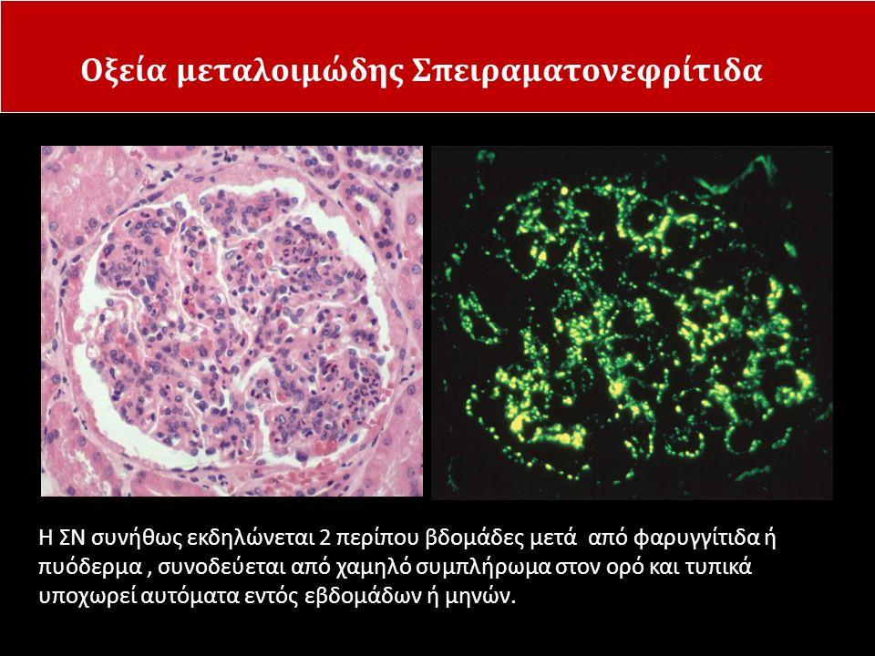 Οξεία μεταλοιμώδης Σπειραματονεφρίτιδα Η ΣΝ συνήθως εκδηλώνεται 2 περίπου βδομάδες μετά από φαρυγγίτιδα ή πυόδερμα, συνοδεύεται από χαμηλό συμπλήρωμα