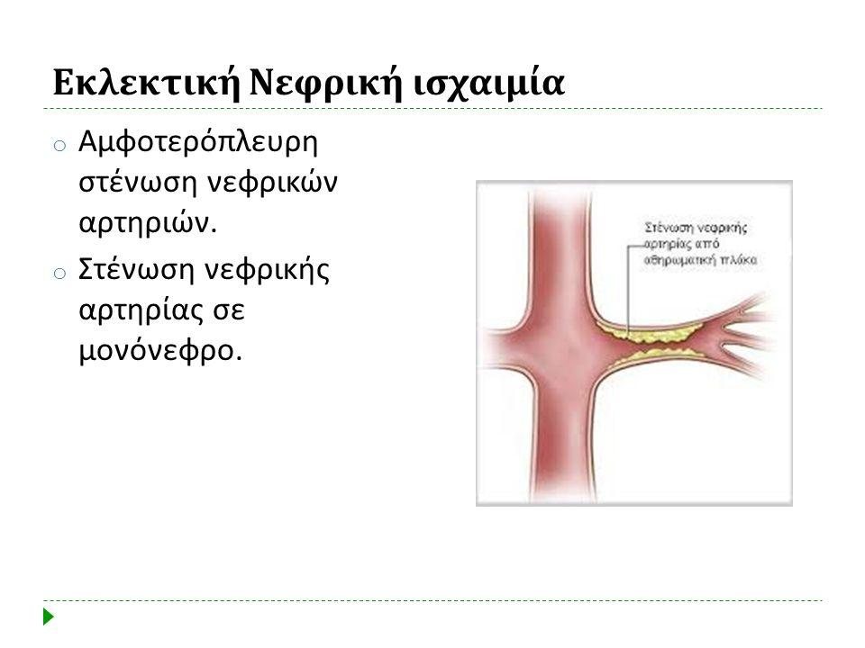 Εκλεκτική Νεφρική ισχαιμία o Αμφοτερόπλευρη στένωση νεφρικών αρτηριών. o Στένωση νεφρικής αρτηρίας σε μονόνεφρο.