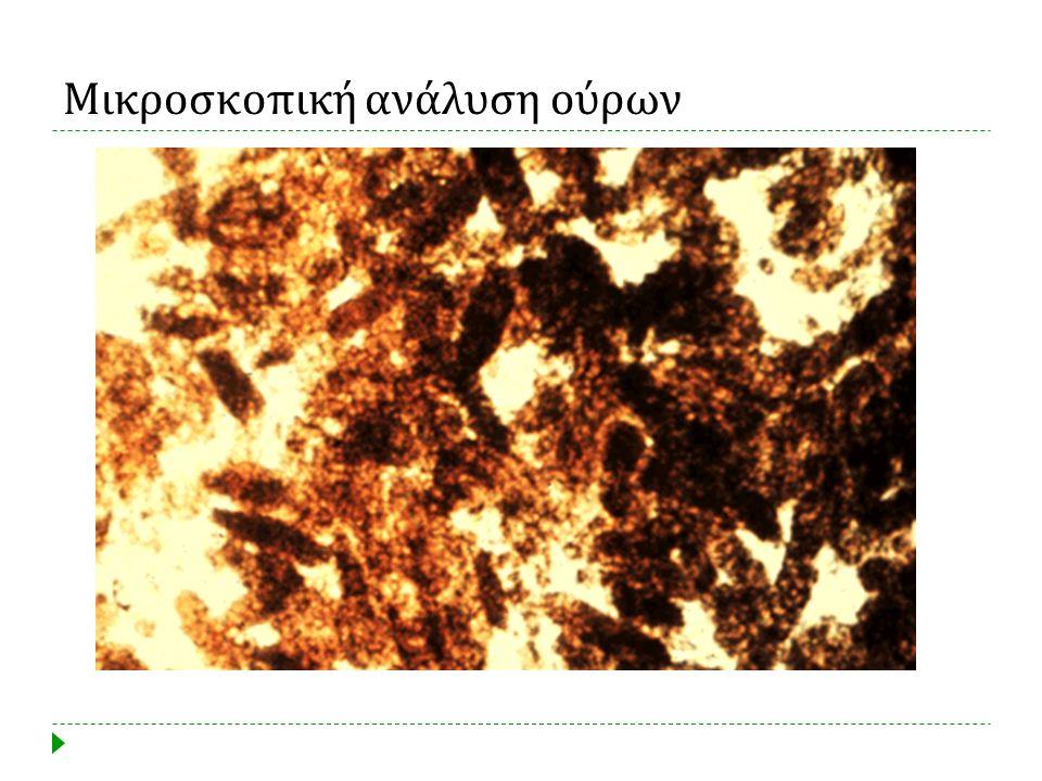 Μικροσκοπική ανάλυση ούρων