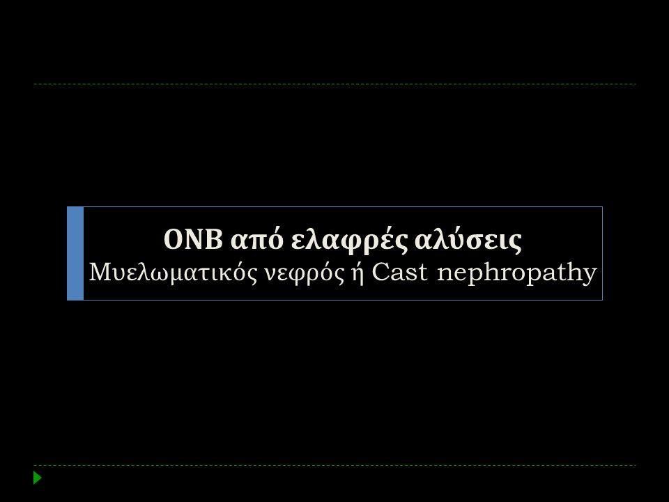 ΟΝΒ από ελαφρές αλύσεις M υελωματικός νεφρός ή Cast nephropathy