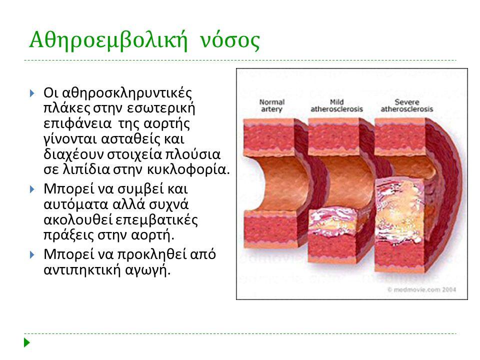 Αθηροεμβολική νόσος  Οι αθηροσκληρυντικές πλάκες στην εσωτερική επιφάνεια της αορτής γίνονται ασταθείς και διαχέουν στοιχεία πλούσια σε λιπίδια στην