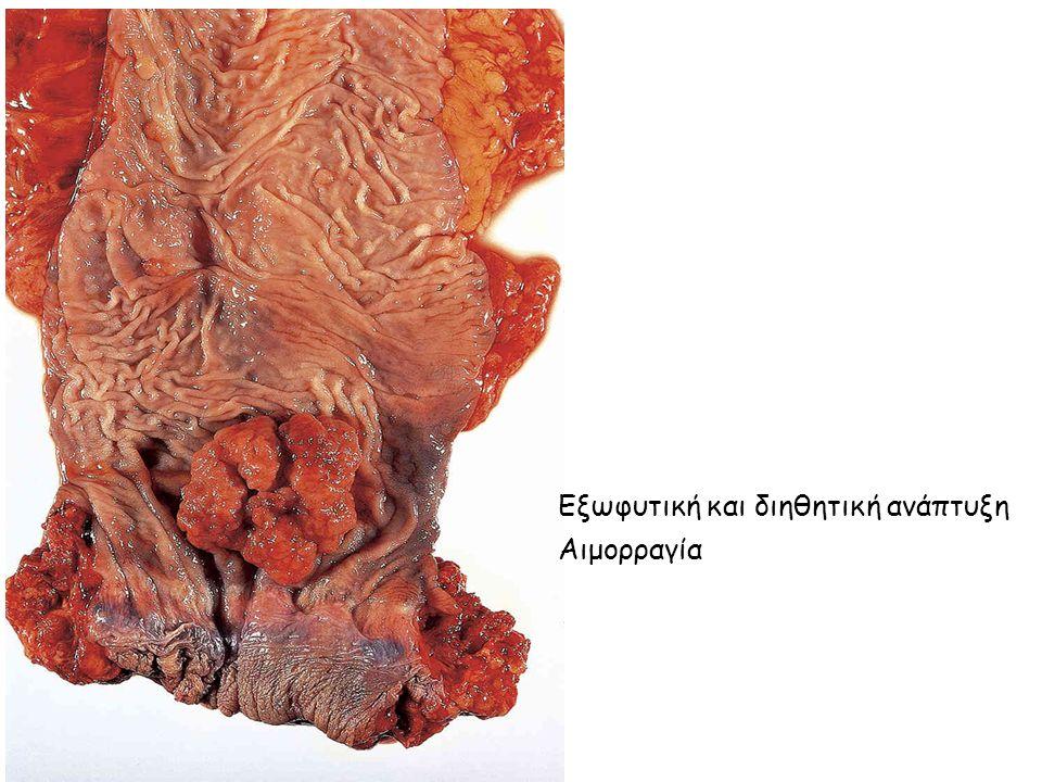 Εξωφυτική και διηθητική ανάπτυξη Αιμορραγία
