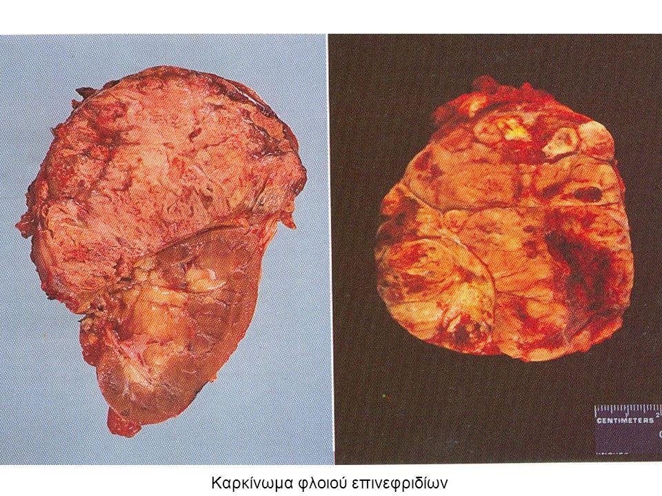 Καρκίνωμα φλοιού επινεφριδίων