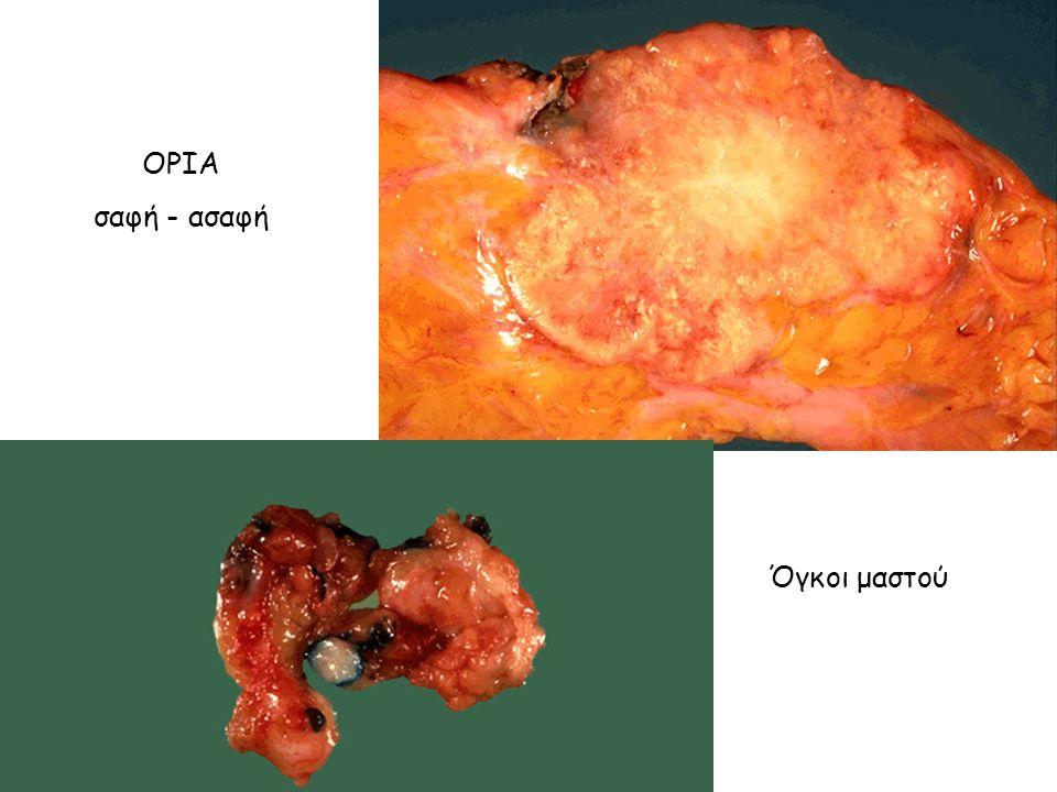 ΟΡΙΑ σαφή - ασαφή Όγκοι μαστού