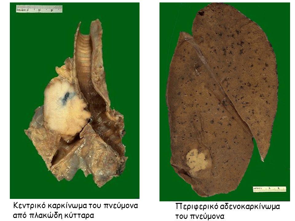 Κεντρικό καρκίνωμα του πνεύμονα από πλακώδη κύτταρα Περιφερικό αδενοκαρκίνωμα του πνεύμονα