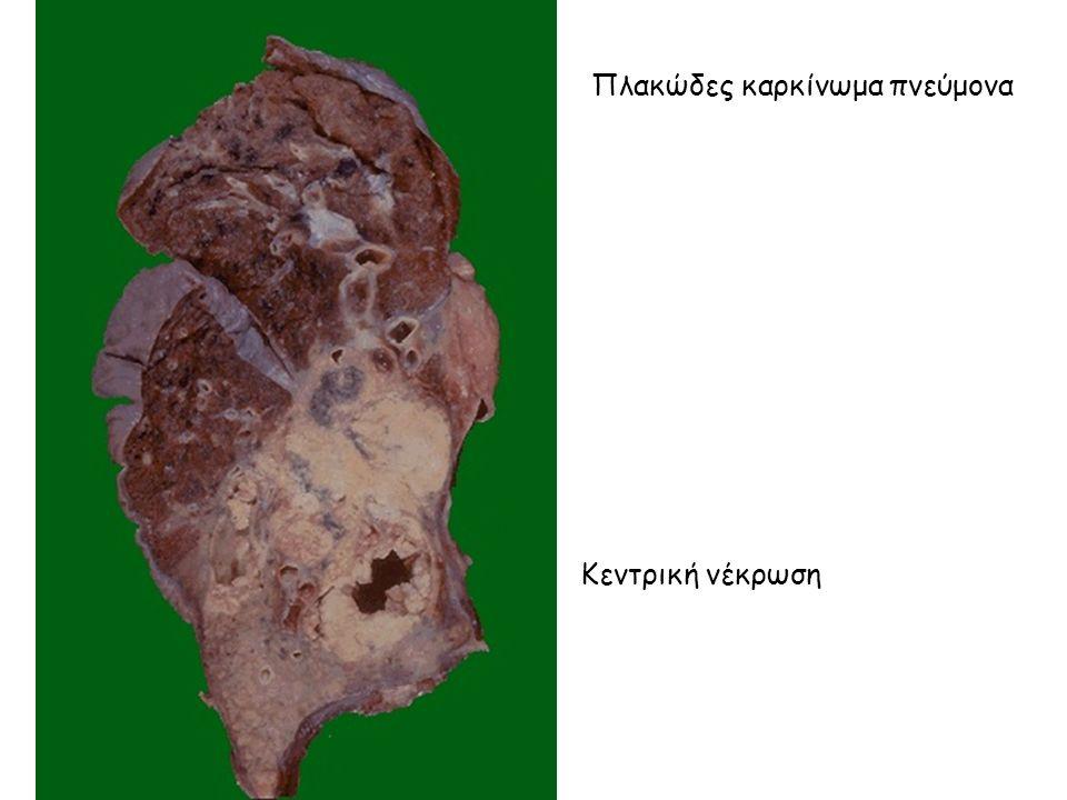 Κεντρική νέκρωση Πλακώδες καρκίνωμα πνεύμονα