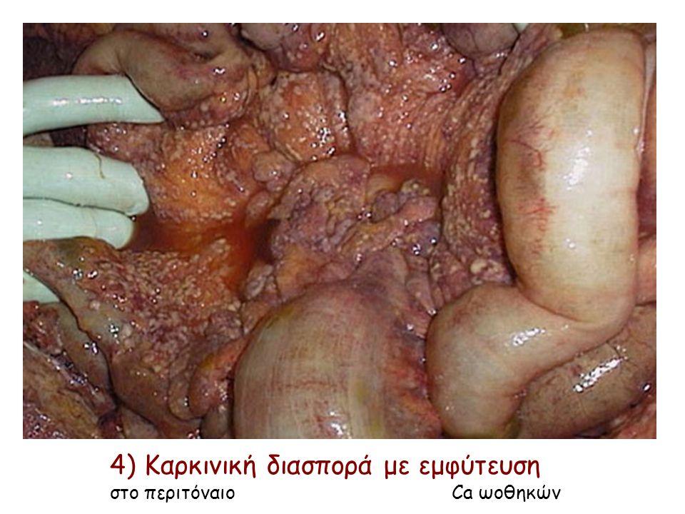 4) Καρκινική διασπορά με εμφύτευση στο περιτόναιο Ca ωοθηκών
