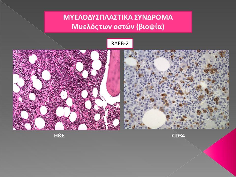 ΜΥΕΛΟΔΥΣΠΛΑΣΤΙΚΑ ΣΥΝΔΡΟΜΑ Μυελός των οστών (βιοψία) RAEB-2 H&ECD34
