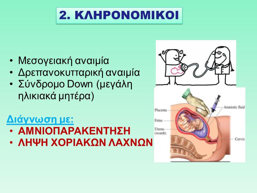 Μεσογειακή αναιμία Δρεπανοκυτταρική αναιμία Σύνδρομο Down (μεγάλη ηλικιακά μητέρα) Διάγνωση με: ΑΜΝΙΟΠΑΡΑΚΕΝΤΗΣΗ ΛΗΨΗ ΧΟΡΙΑΚΩΝ ΛΑΧΝΩΝ 2. ΚΛΗΡΟΝΟΜΙΚΟΙ