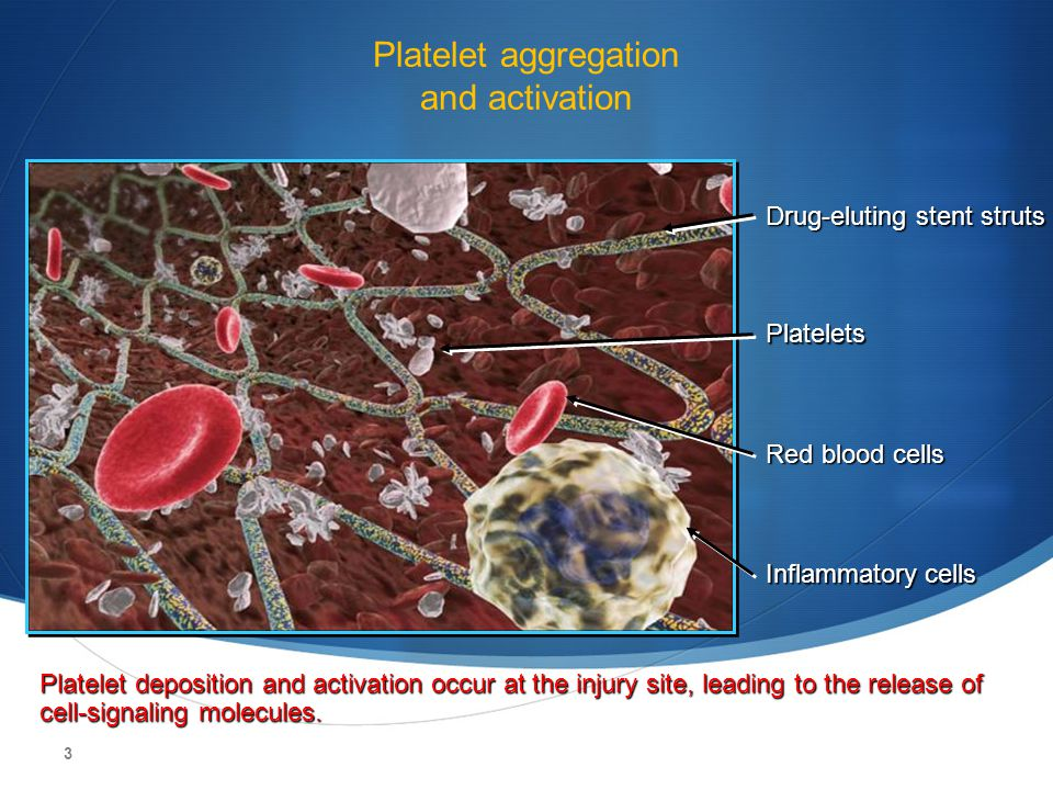 3 Platelet aggregation and activation Drug-eluting stent struts Platelets Inflammatory cells Platelet deposition and activation occur at the injury si