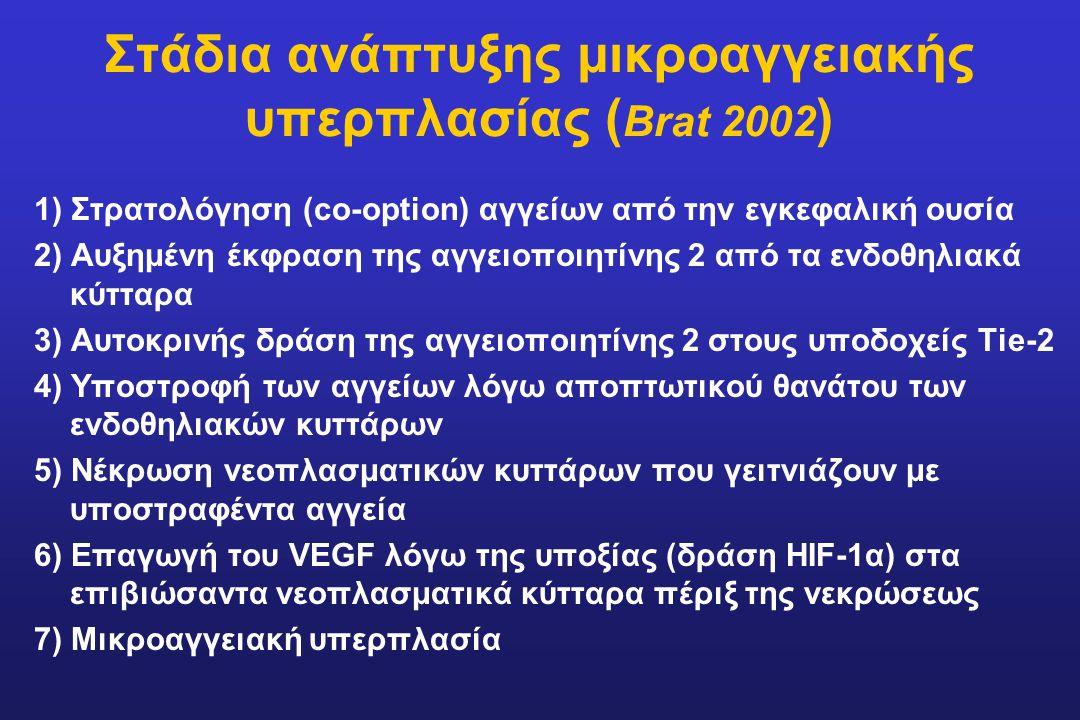 Στάδια ανάπτυξης μικροαγγειακής υπερπλασίας ( Brat 2002 ) 1) Στρατολόγηση (co-option) αγγείων από την εγκεφαλική ουσία 2) Αυξημένη έκφραση της αγγειοπ