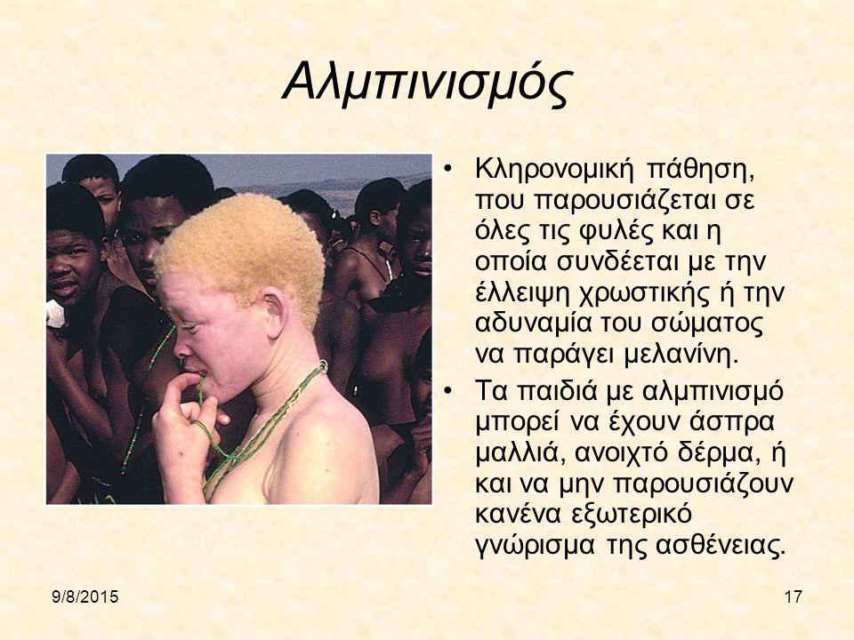 9/8/201517 Αλμπινισμός Κληρονομική πάθηση, που παρουσιάζεται σε όλες τις φυλές και η οποία συνδέεται με την έλλειψη χρωστικής ή την αδυναμία του σώματος να παράγει μελανίνη.