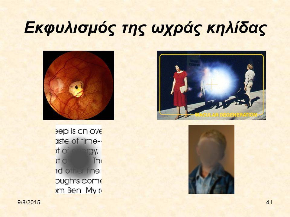 9/8/201541 Εκφυλισμός της ωχράς κηλίδας