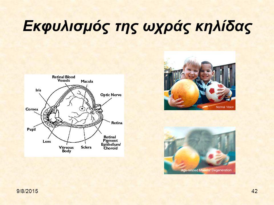 9/8/201542 Εκφυλισμός της ωχράς κηλίδας