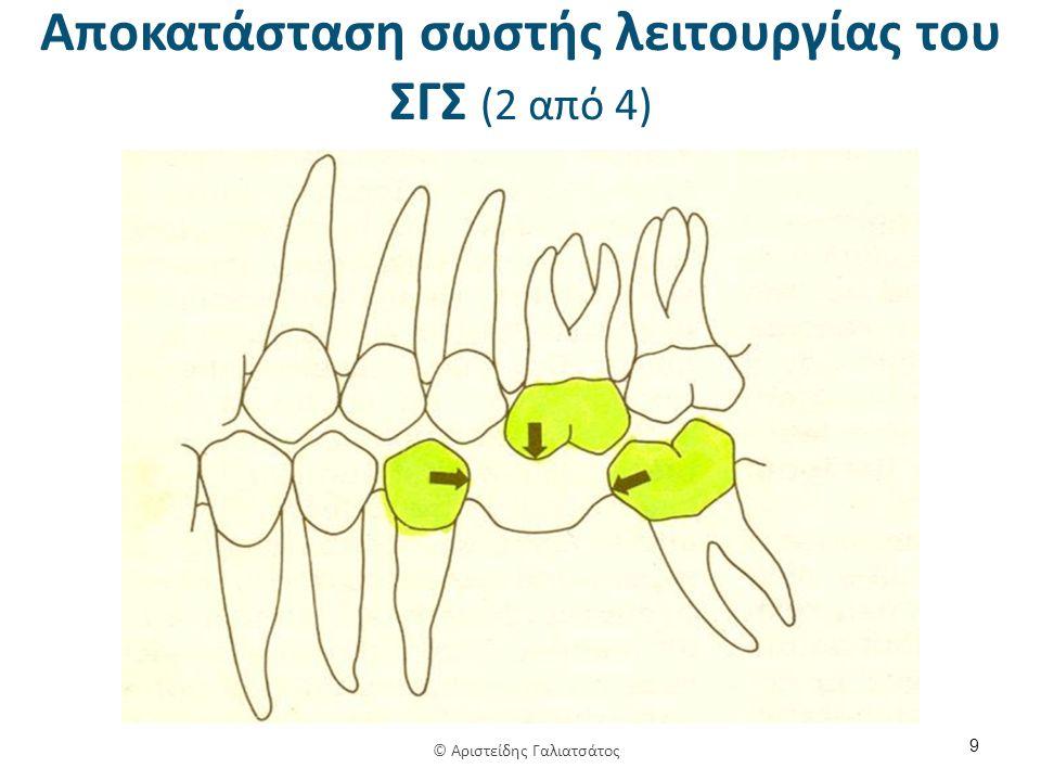 Αποκατάσταση σωστής λειτουργίας του ΣΓΣ (2 από 4) 9 © Αριστείδης Γαλιατσάτος