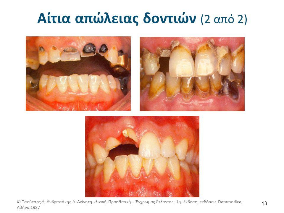 Αίτια απώλειας δοντιών (2 από 2) 13 © Τσούτσος Α, Ανδριτσάκης Δ. Ακίνητη κλινική Προσθετική – Έγχρωμος Άτλαντας. 1η έκδοση, εκδόσεις Datamedica, Αθήνα