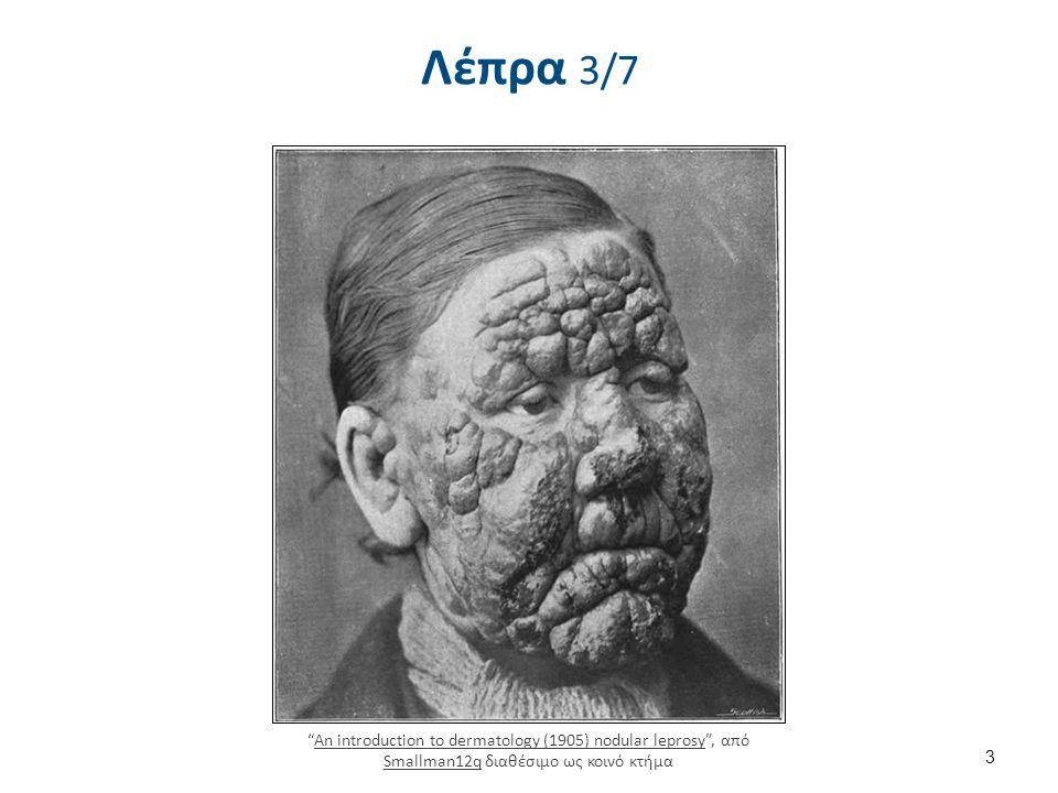 Κλινικό φάσμα της λέπρας 4/6 5.Λεπροματώδης λέπρα – Σε αυτήν την μορφή της νόσου θεωρητικά κάθε όργανο μπορεί να προσβληθεί, αλλά οι αλλαγές που παρατηρούνται στο δέρμα είναι το πρωιμότερο φαινόμενο.