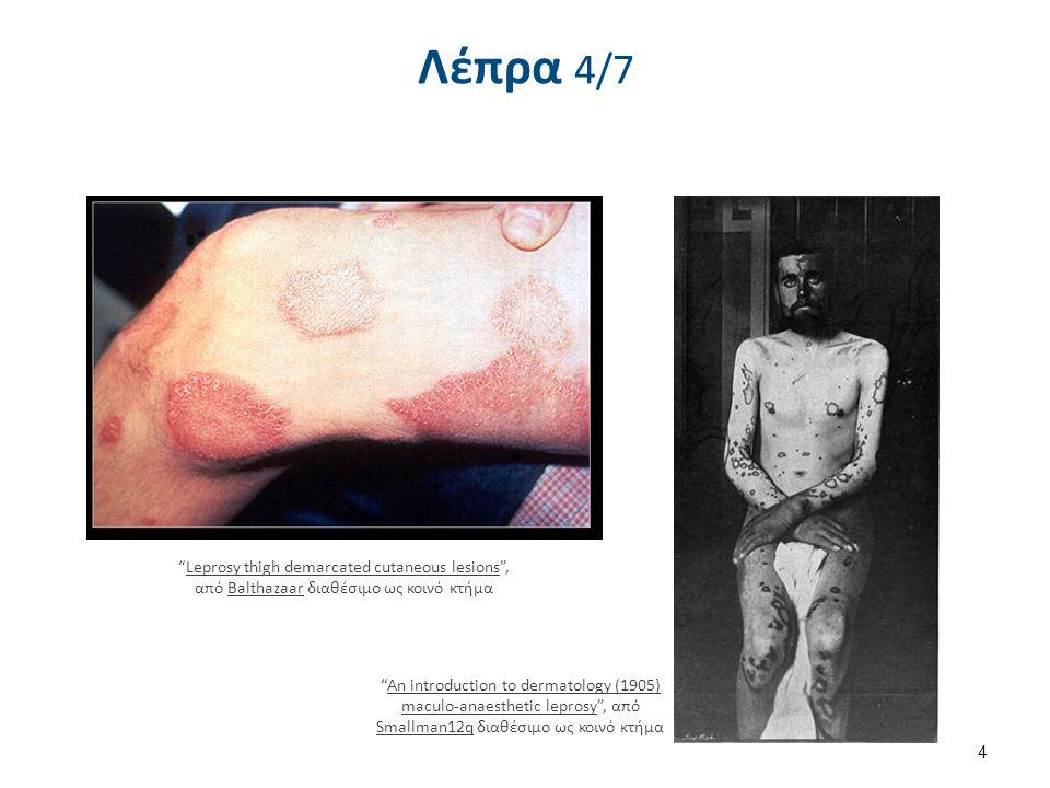 Κλινικό φάσμα της λέπρας 5/6 Λεπροματώδης λέπρα (συνέχεια) Συχνά προσβάλλονται οι βλεννογόνοι, οδηγώντας σε ρινική απόφραξη, λαρυγγίτιδα και βράγχος φωνής.