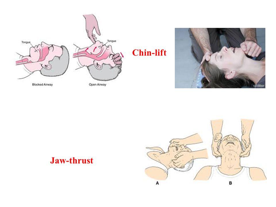 Chin-lift Jaw-thrust