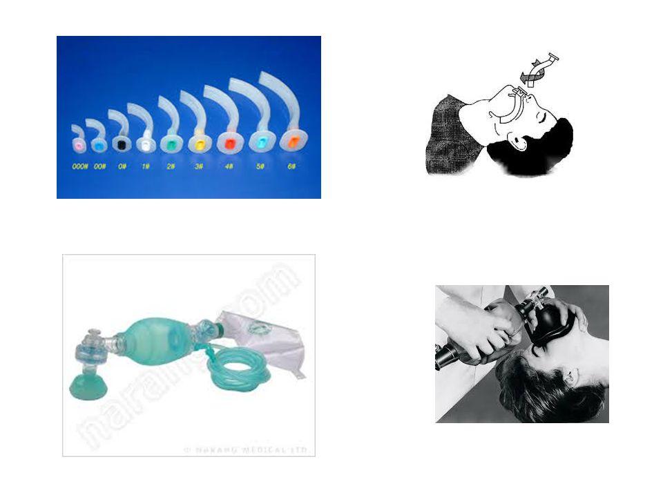 Ασθενής με αναπνευστική προσπάθεια Οξυγόνο με υψηλή ροή Καθάρισε και διασφάλισε τον αεραγωγό Σημεία απόφραξης ανώτερου αεραγωγού: ρηχές και γρήγορες αναπνοές, συριγμός, δυσφωνία, βήχας.
