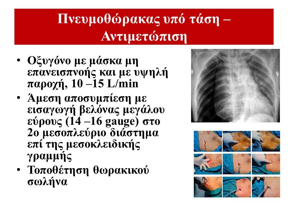 Πνευμοθώρακας υπό τάση – Αντιμετώπιση Οξυγόνο με μάσκα μη επανεισπνοής και με υψηλή παροχή, 10 –15 L/min Άμεση αποσυμπίεση με εισαγωγή βελόνας μεγάλου