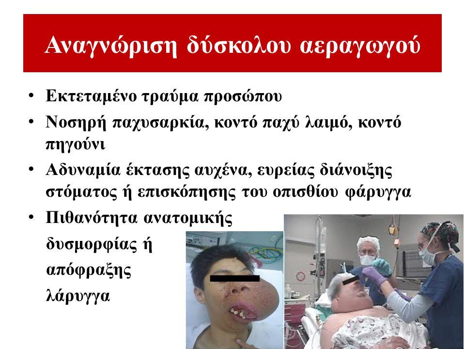 Αναγνώριση δύσκολου αεραγωγού Εκτεταμένο τραύμα προσώπου Νοσηρή παχυσαρκία, κοντό παχύ λαιμό, κοντό πηγούνι Αδυναμία έκτασης αυχένα, ευρείας διάνοιξης