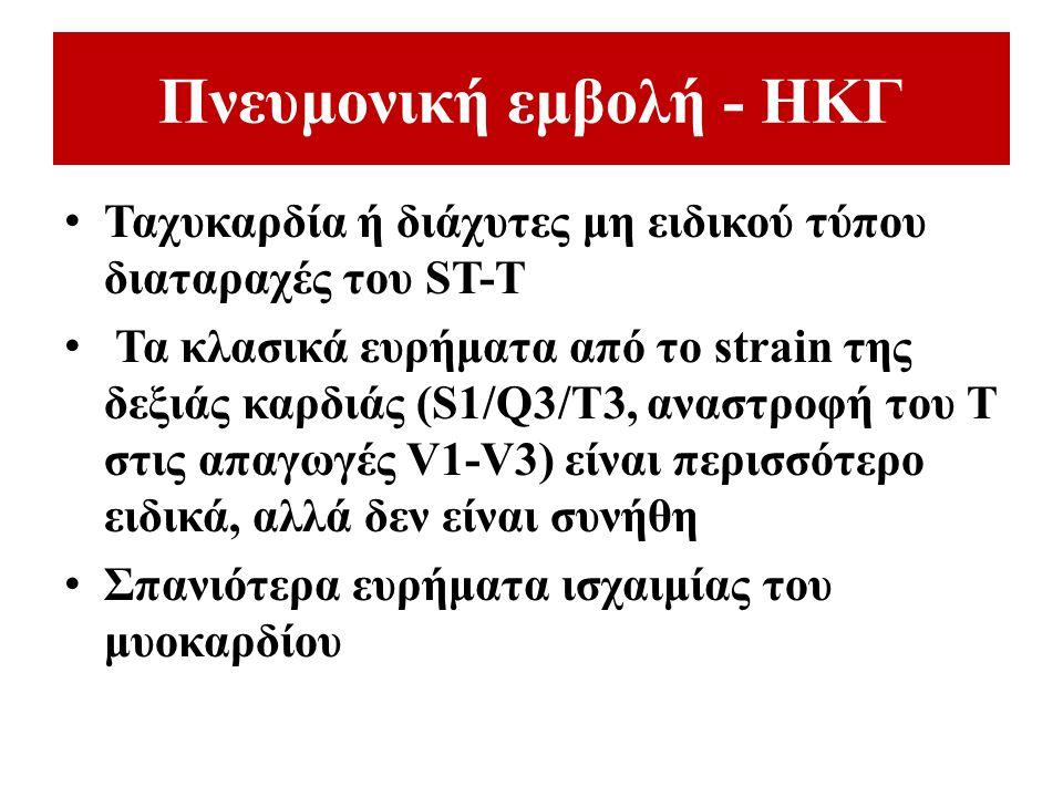 Πνευμονική εμβολή - ΗΚΓ Ταχυκαρδία ή διάχυτες μη ειδικού τύπου διαταραχές του ST-T Τα κλασικά ευρήματα από το strain της δεξιάς καρδιάς (S1/Q3/T3, ανα