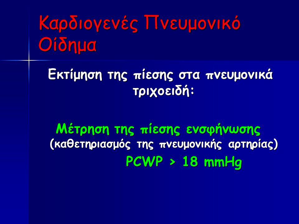 Καρδιογενές Πνευμονικό Οίδημα Εκτίμηση της πίεσης στα πνευμονικά τριχοειδή: Εκτίμηση της πίεσης στα πνευμονικά τριχοειδή: Μέτρηση της πίεσης ενσφήνωσης (καθετηριασμός της πνευμονικής αρτηρίας) PCWP > 18 mmHg PCWP > 18 mmHg