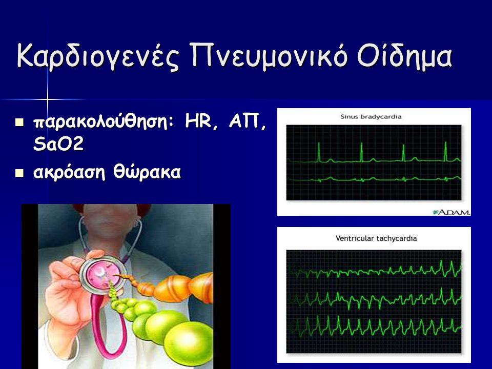 Καρδιογενές Πνευμονικό Οίδημα παρακολούθηση: HR, ΑΠ, SaO2 παρακολούθηση: HR, ΑΠ, SaO2 ακρόαση θώρακα ακρόαση θώρακα