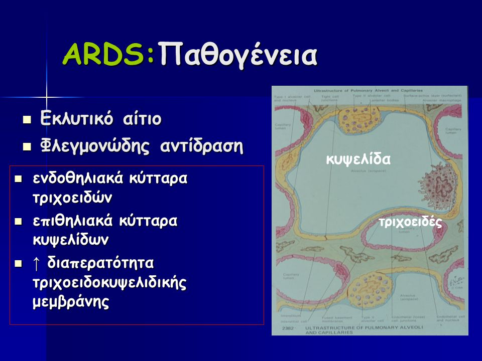 ARDS:Παθογένεια Εκλυτικό αίτιο Εκλυτικό αίτιο Φλεγμονώδης αντίδραση Φλεγμονώδης αντίδραση ενδοθηλιακά κύτταρα τριχοειδών ενδοθηλιακά κύτταρα τριχοειδών επιθηλιακά κύτταρα κυψελίδων επιθηλιακά κύτταρα κυψελίδων ↑ διαπερατότητα τριχοειδοκυψελιδικής μεμβράνης ↑ διαπερατότητα τριχοειδοκυψελιδικής μεμβράνης κυψελίδα τριχοειδές