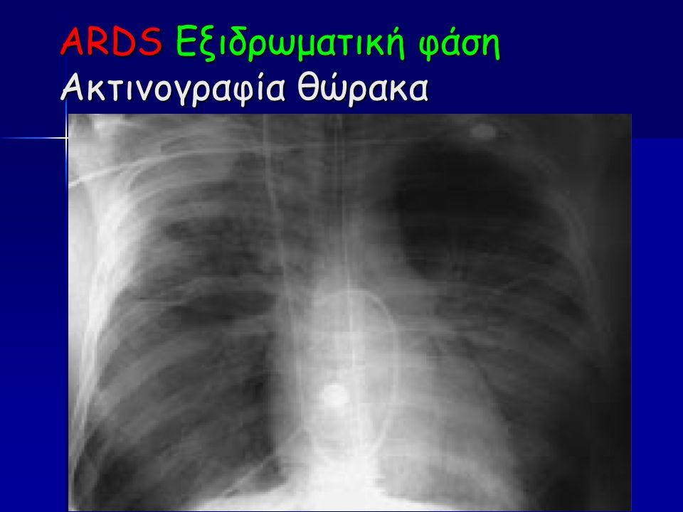 ARDS Εξιδρωματική φάση Ακτινογραφία θώρακα