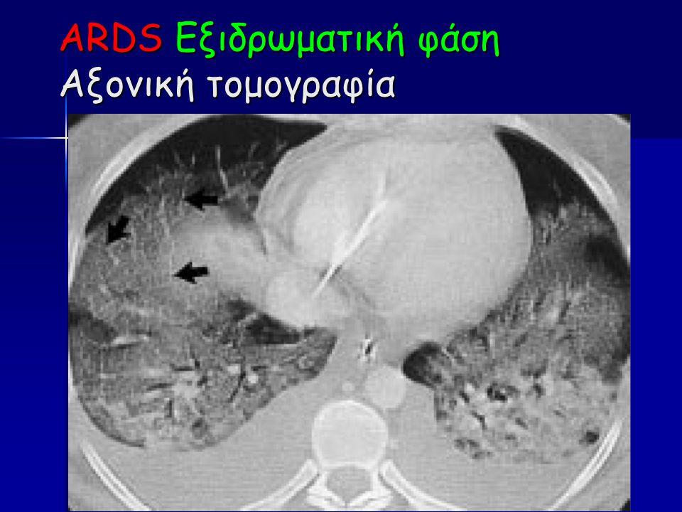 ARDS Εξιδρωματική φάση Αξονική τομογραφία