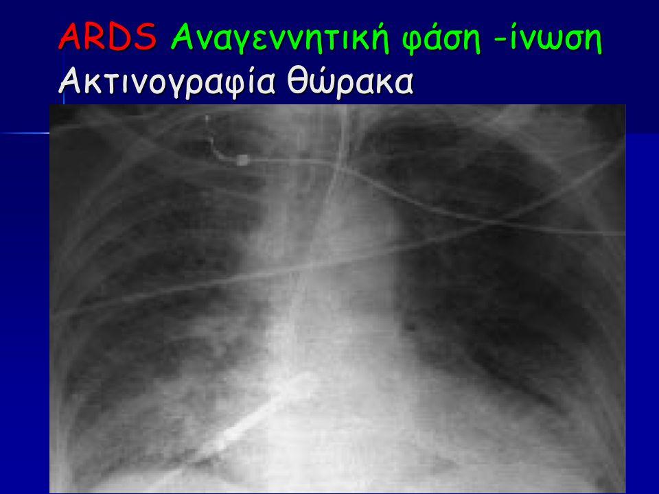 ARDS Αναγεννητική φάση -ίνωση Ακτινογραφία θώρακα