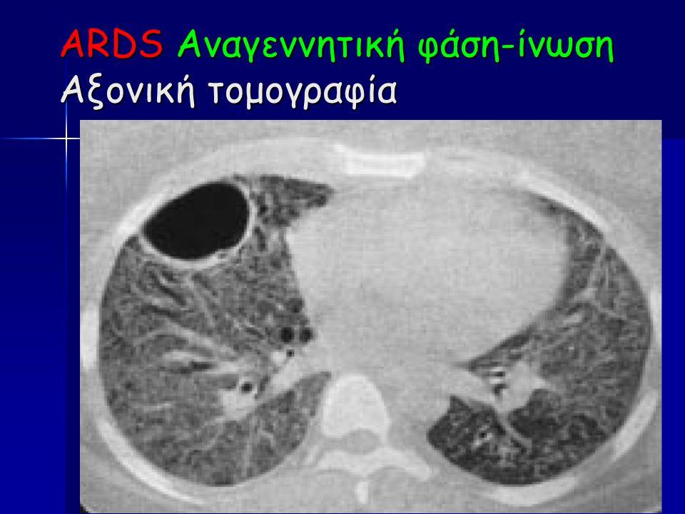 ARDS Αναγεννητική φάση-ίνωση Αξονική τομογραφία