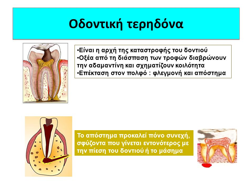 Οδοντική τερηδόνα Είναι η αρχή της καταστροφής του δοντιού Οξέα από τη διάσπαση των τροφών διαβρώνουν την αδαμαντίνη και σχηματίζουν κοιλότητα Επέκτασ
