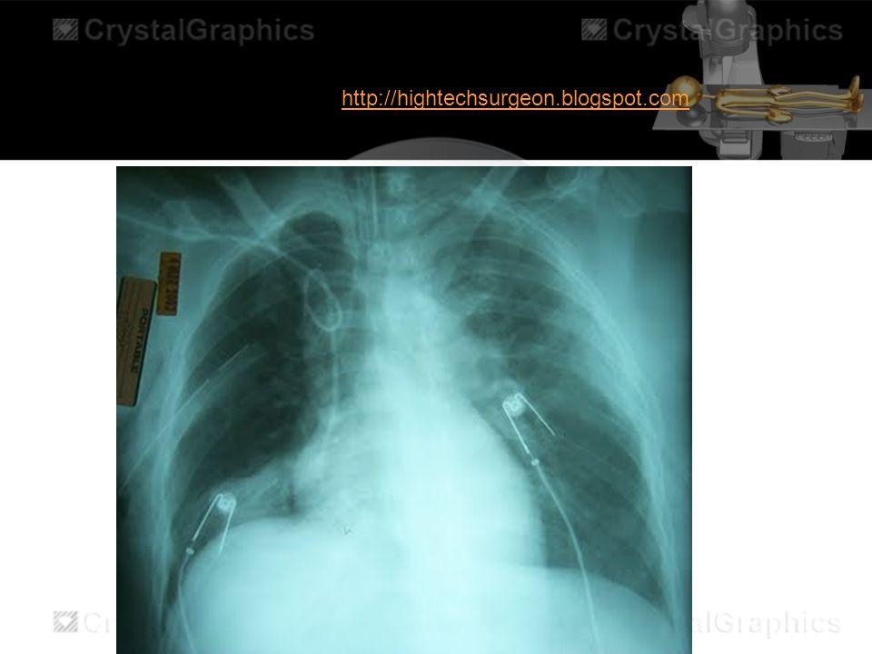 http://hightechsurgeon.blogspot.com