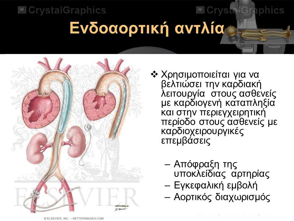Ενδοαορτική αντλία  Χρησιμοποιείται για να βελτιώσει την καρδιακή λειτουργία στους ασθενείς με καρδιογενή καταπληξία και στην περιεγχειρητική περίοδο